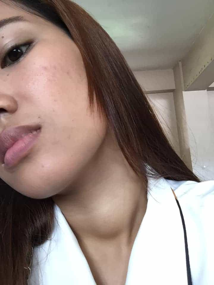 3 Months of Taking Luxxe White and Luxxe Protect Nawala ang Goiter